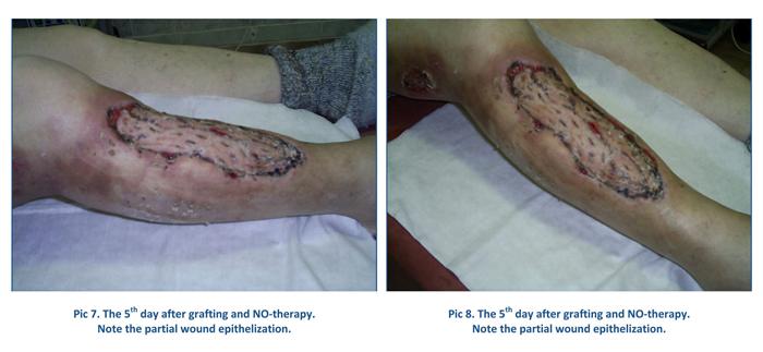 Égési sérülés elfertőződése, Égési sérülések gyógyítása | POLARISOL